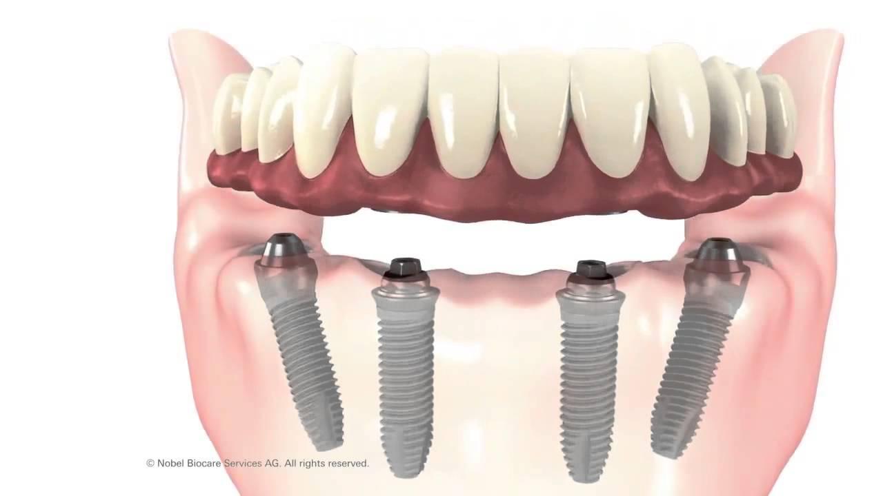 Prothèse clipsée sur implant et sur dent