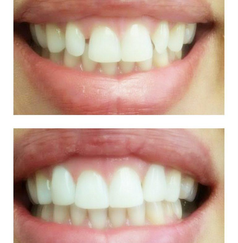 Qu'est-ce que c'est une facette dentaire ?