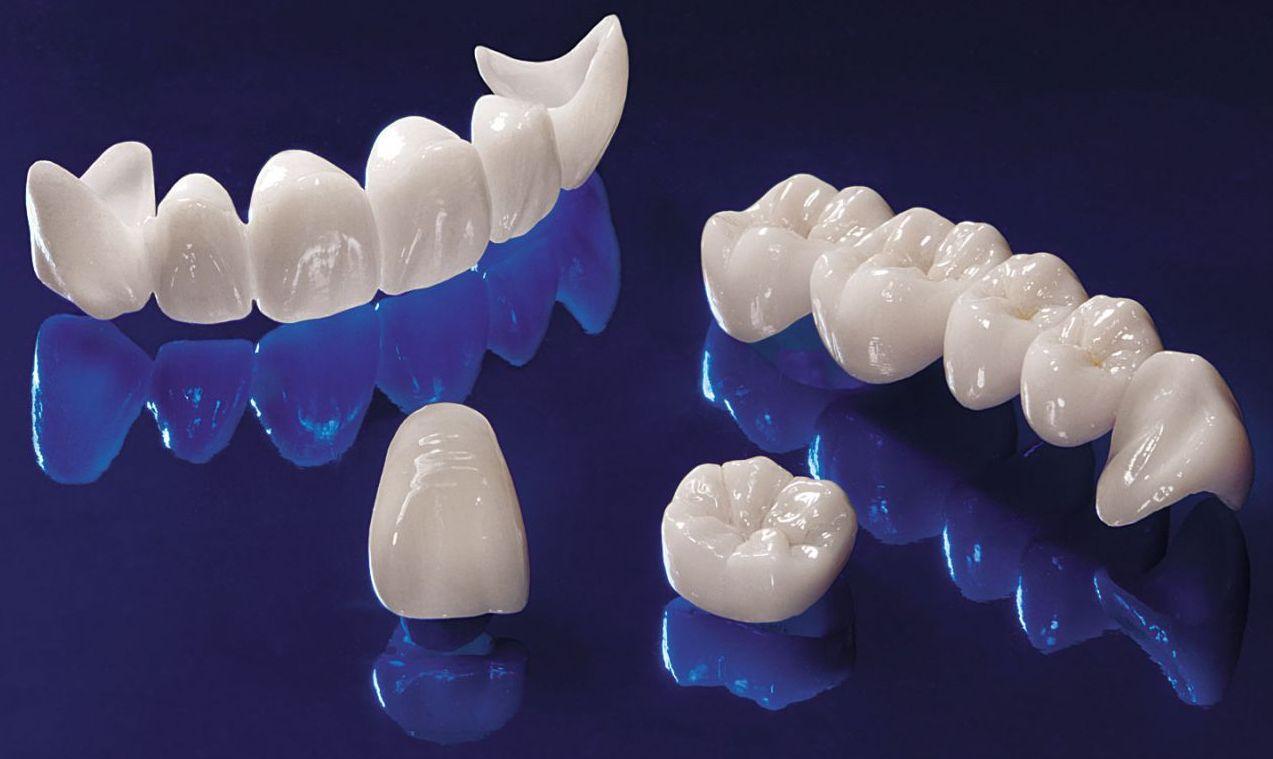 La durée de vie de la couronne dentaire en zircone