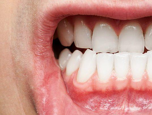 Déchaussement des dents